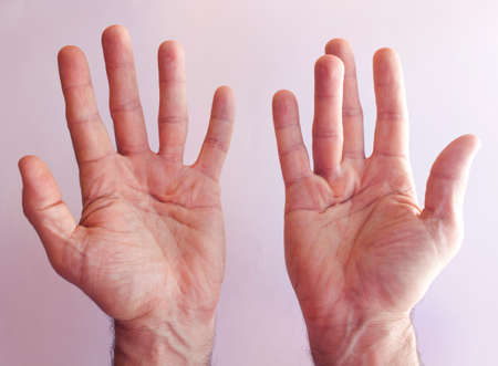 Hands of an man with Dupuytren contracture disease  against  bright background