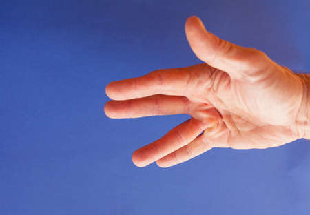 contracture: Hand of an man with Dupuytren contracture  disease, against  medical blue background, isolated