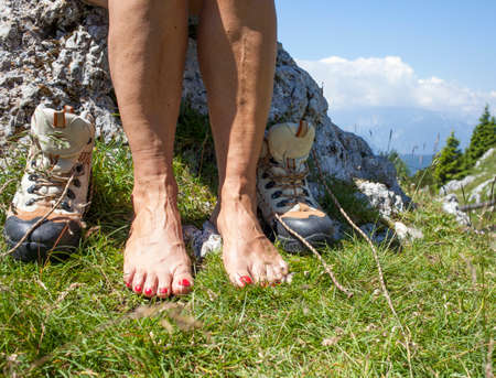 Bare feet and legs with Varicose Veins of tourist hiker, resting high in mountains