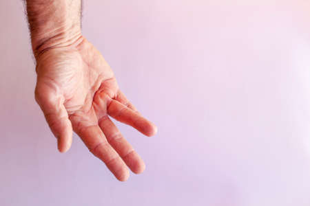 contracture: Hand of an man with Dupuytren contracture disease, against bright background