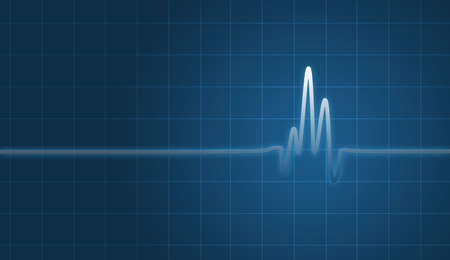 electrocardiogram: digital creation of an EKG chart showing heartbeat. Stock Photo