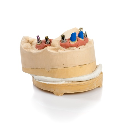 Dental tooth implants in a mold of a persons mouth on white Stock Photo - 14478422
