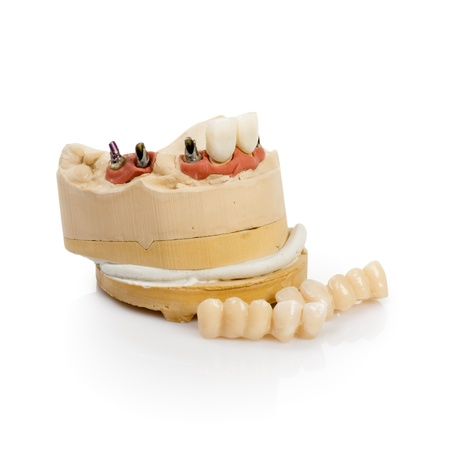 Dental tooth implants in a mold of a persons mouth on white Stock Photo