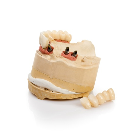 Dental tooth implants in a mold of a persons mouth on white Stock Photo - 14478420