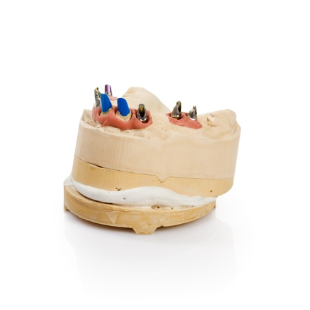 Dental tooth implants in a mold of a persons mouth on white Stock Photo - 14478419