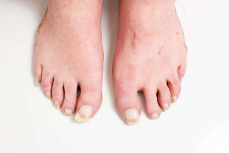 Men's unkempt feet with long uncut nails. The concept of begging, a low standard of living, does not follow itself.