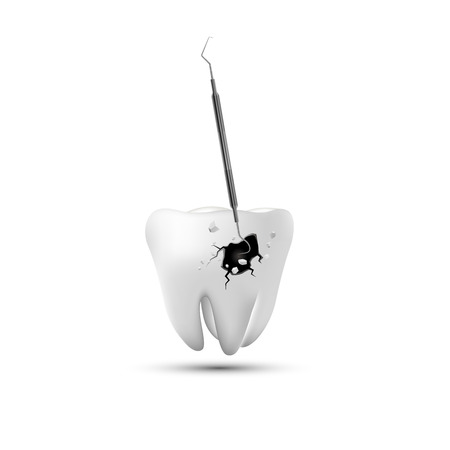Dental Instruments,Protect Tooth - Illustration