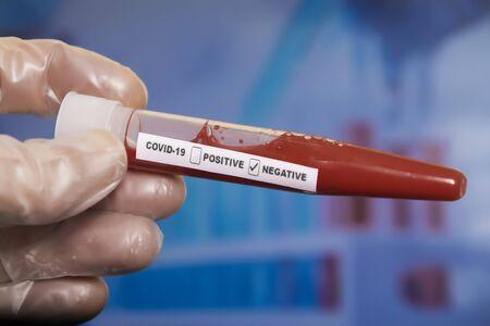 Blood sample tube negative with COVID-19 or novel coronavirus Banco de Imagens