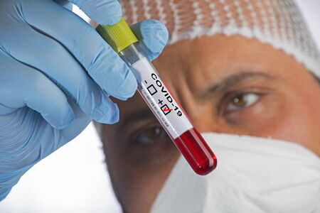 Blood sample tube positive with COVID-19 or novel coronavirus Banco de Imagens
