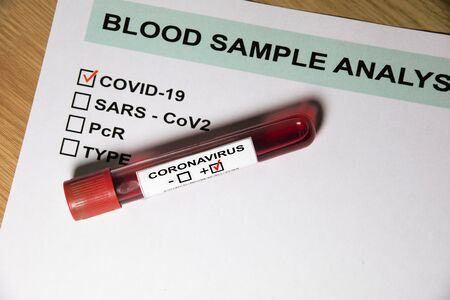 Test tube on paper with blood test results for coronavirus or covid19