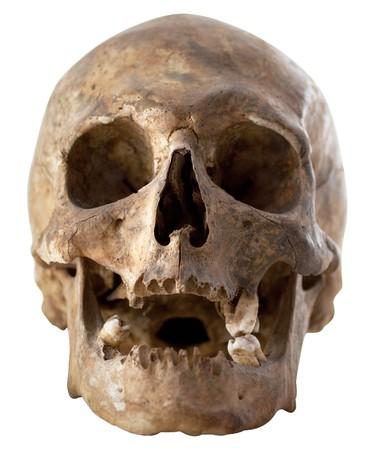 calavera: Aislado de cr�neo humano sobre fondo blanco