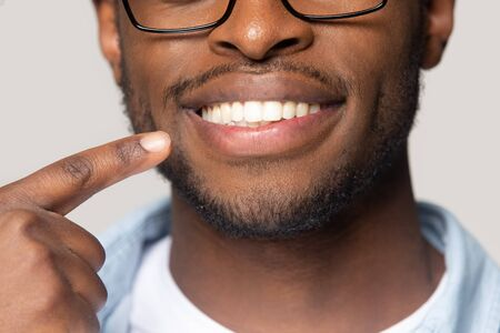 Close up studio shot isolated on grey background african guy pointing finger to white shiny toothy smile
