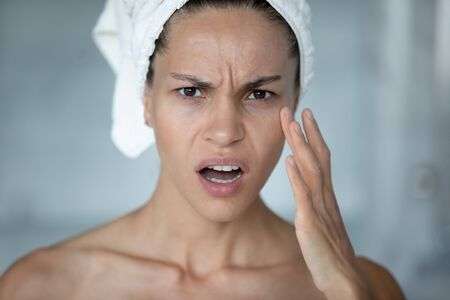 Close up woman with towel on head touch face look at camera feels stressed see first mimic facial wrinkles. Need cosmetology treatment hyaluronic acid, chemical peeling, rejuvenation, facelift concept