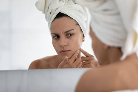 Close up unhappy young woman wearing white bath towel on head squeezing pimple on cheek, standing in bathroom, dissatisfied girl checking face after shower, looking in mirror, skin problem