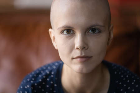 Crop close up portrait of young Caucasian sick hairless woman suffering from cancer look at camera show strength and power, ill bald female patient struggle with oncology, cure for future recovery