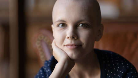 Close up portrait of happy young Caucasian hairless bald woman patient with cancer look at camera show strength power, positive optimistic sick female suffering from oncology, healthcare concept