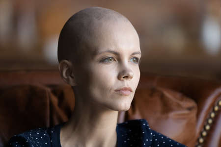 Close up of pensive sad young Caucasian woman cancer patient with bald hairless head look in distance dreaming thinking, thoughtful unhappy ill female suffering from oncology pondering of recovery