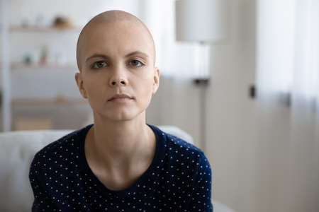 Profile picture of tired unhappy sick young hairless woman struggling with oncology lack energy. Headshot portrait of sad distressed ill bald female patient suffer from cancer. Healthcare concept. Stock Photo