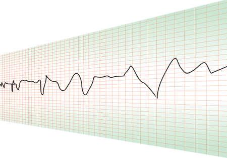 stress test: cardiology test perspective Illustration