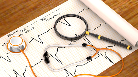 cardiogram: Stethoscope, paper, cardiogram and magnifier are on the hospital table