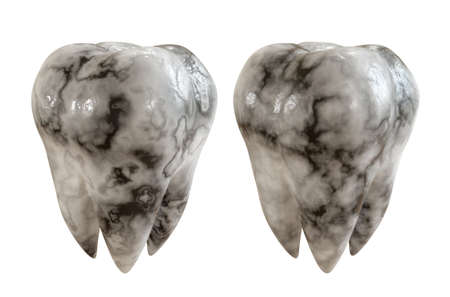 Caries patient tooth on a white background. Tooth disease. 3D Rendering. 免版税图像