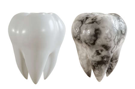 Comparison image of a healthy tooth and a caries patient. 3D Rendering.