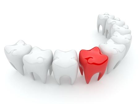 Bad tooth  3D illustration isolated  stomatology