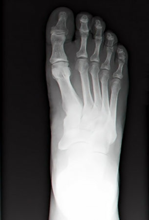 phalanges: human leg bone X-rays Stock Photo