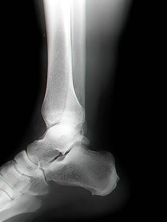 x rays negative: human leg bone X-rays Stock Photo