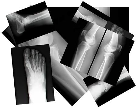 x ray skeleton: close up of human leg bone X-rays