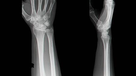 x rays negative: X-ray hand