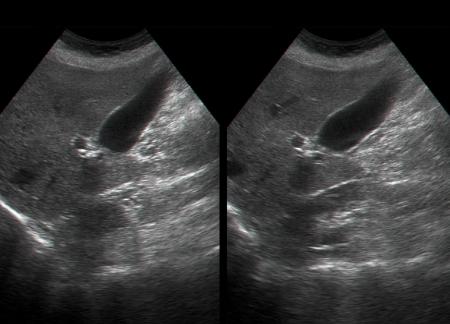 인간의 내부 장기의 초음파 검사