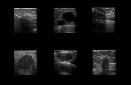 Ultrasonic study of the female breast to detect cancer tumors Reklamní fotografie
