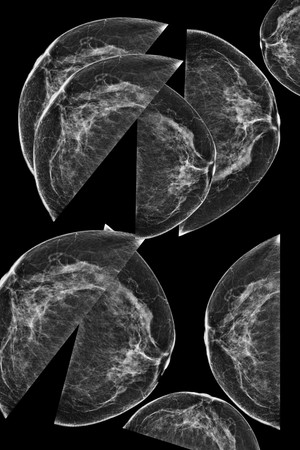 Lateral mammogram of female breast. In higher magnification you may see  small micro-calcifications as sign of probable malignancy of the tumor. photo