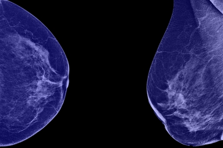 Lateral mammogram of female breast  In higher magnification  photo