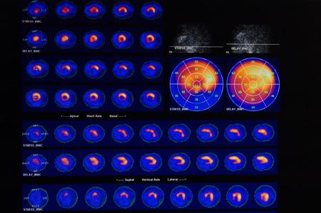 MRT del corazón y los vasos coronarios utilizando líquido de contraste y estrés