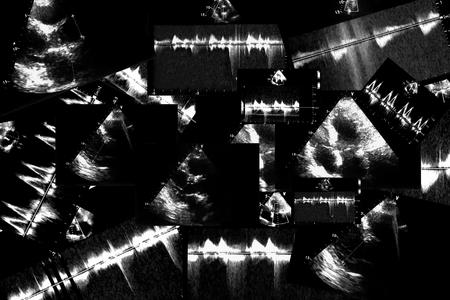 Cardiac ultrasound images. Screen of echo-cardiography machine. Doppler echo