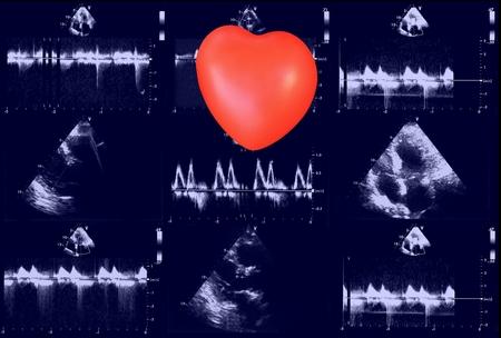 Cardiac ultrasound images and small heart . Screen of echo-cardiography machine. Doppler echo Reklamní fotografie