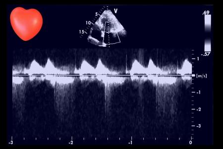 Imágenes de ecografía cardíaca y corazón pequeño. Pantalla de máquina de ecocardiografía. Eco Doppler