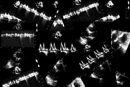 Cardiac ultrasound images . Screen of echo-cardiography machine. Doppler echo