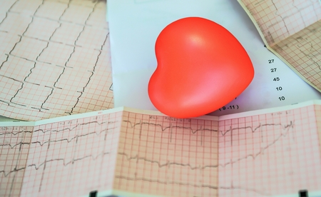 Cardiogram with small red heart on the table background. Top view, copy space