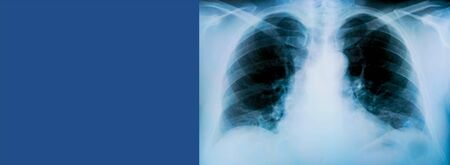 X-ray of a patient's lungs with pronounced traces of the inflammatory process on blue background