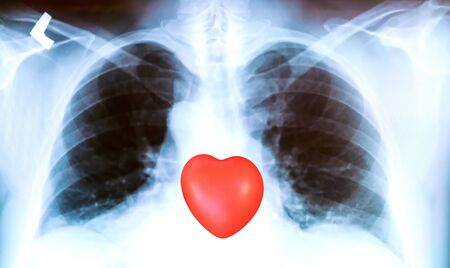X-ray of a patient's lungs with pronounced traces of the inflammatory process and red heart sign . Imagens
