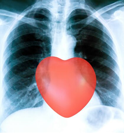 X-ray of a patient's lungs with pronounced traces of the inflammatory process and red heart sign .
