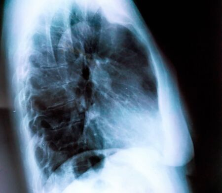 X-ray of a woman patient's lungs with pronounced traces of the inflammatory process