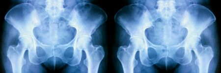 Set of X-ray of human pelvic bones