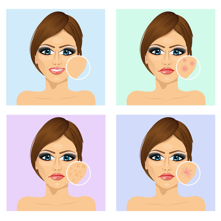 irritation: Icon set for skincare infographi. Young girl with a problem and clean skin of the face