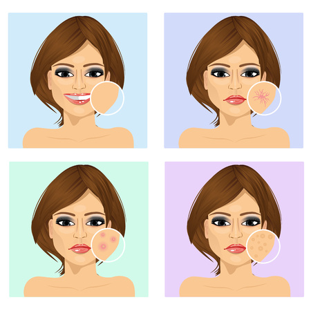 irritation: Icon set for skincare infographi. Young latin woman with a problem and clean skin of the face Illustration