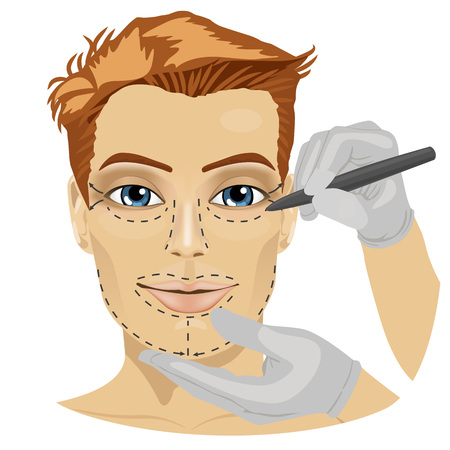 face surgery: Guide lines for surgical incisions on a patient male face on white background Illustration
