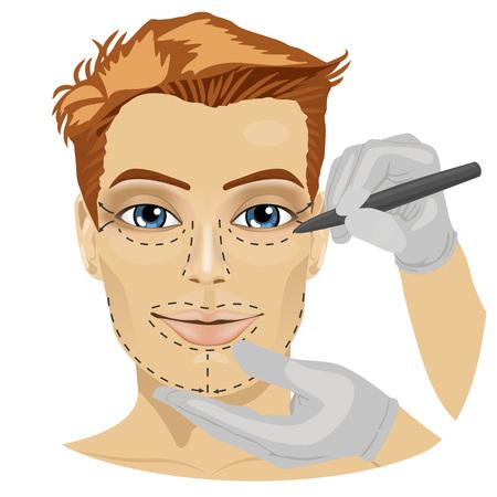 Orientar las líneas de incisiones quirúrgicas en una cara masculina del paciente en el fondo blanco